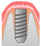 Step4一次手術人工歯根を植え込む